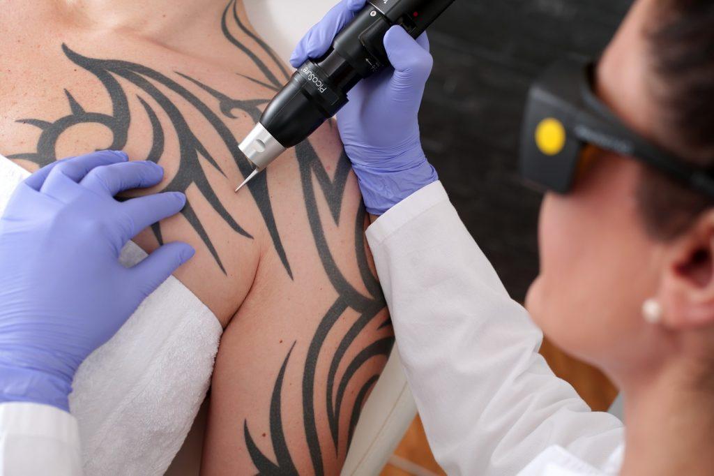 tattoo lasern
